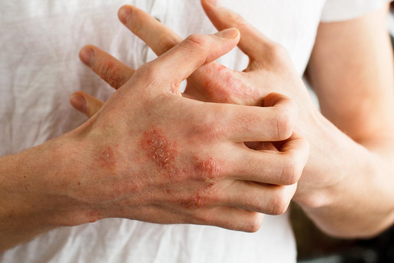 Atopowe zapalenie skóry u dorosłych